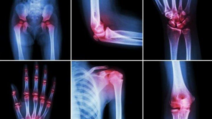 ce se poate face dacă articulațiile mâinilor doare